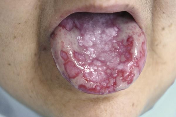 сопровождаются появлением язв по всей полости рта