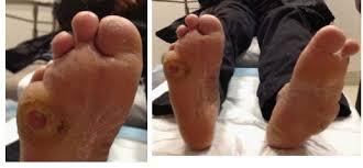 появление язв на ногах