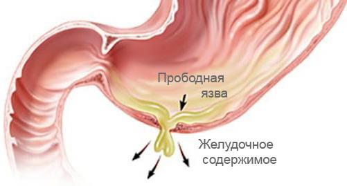 Сок и жидкость из желудка, выплескиваясь на брюшину
