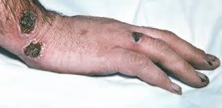 Язвы на руках при сахарном диабете