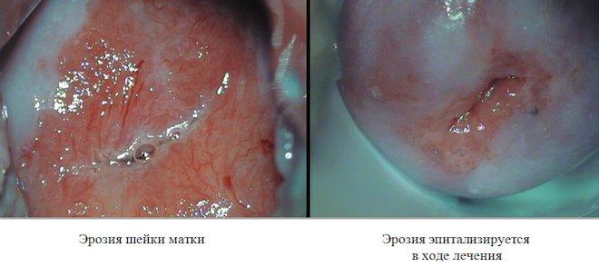 эрозия шейки матки и эрозия в ходе лечения