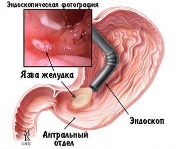 язва желудка эндоскопическая фотография