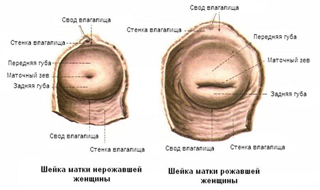 шейка матки нерожавшей и рожавшей женщины