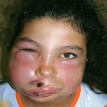 Болезнь проявляется в кожной и генерализованной форме