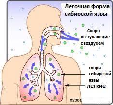 легочная форма сибирской язвы