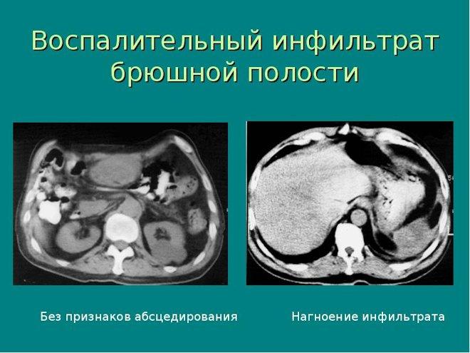 воспалительный инфильтрат брюшной полости