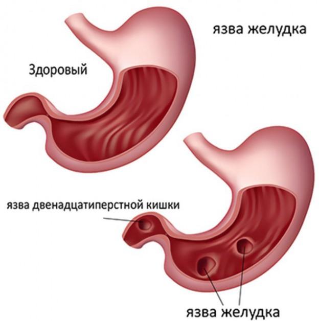 язва двенадцатиперстной кишки и желудка
