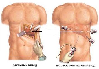 лапароскопический метод