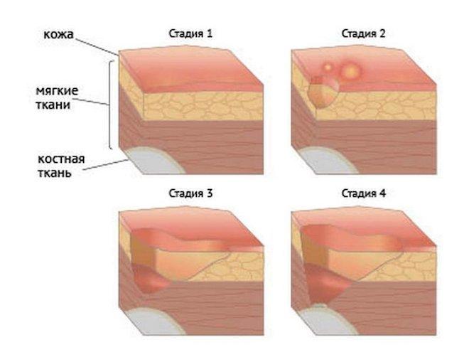 стадии язвы
