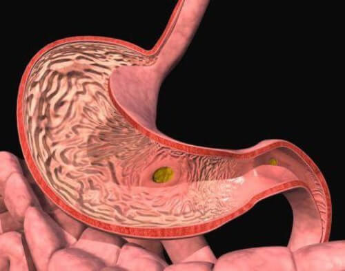каллёзная язва желудка