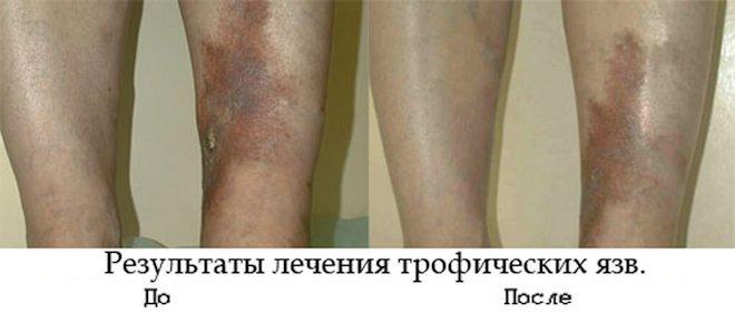 до и после лечения трофических язв