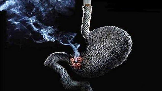 Курение при язвенном поражении желудка
