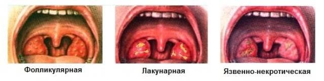типы поражения на миндалях