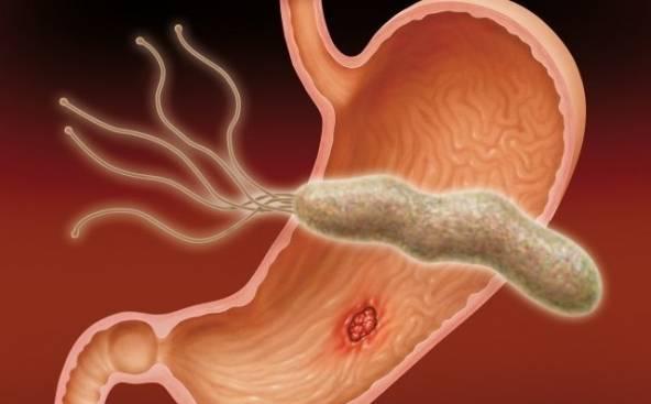 нормализовать желудочную секрецию