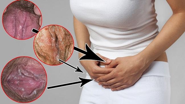 болевые ощущения в зоне таза и гениталий