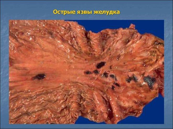 острые язвы желудка