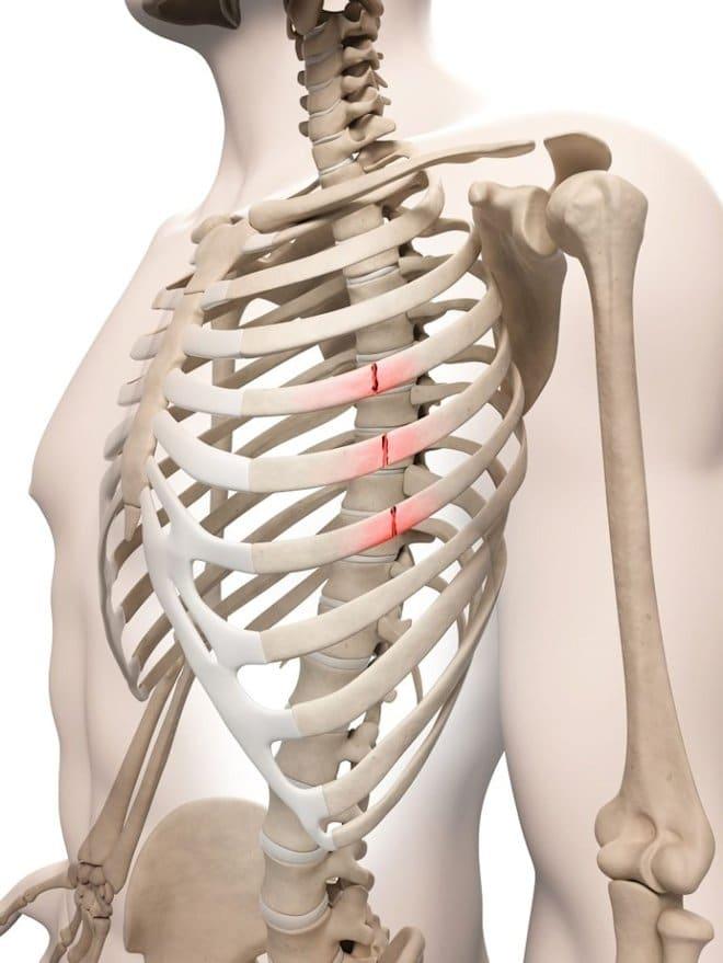 трещина в ребре