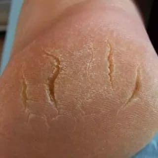 Виды трещин на стопах