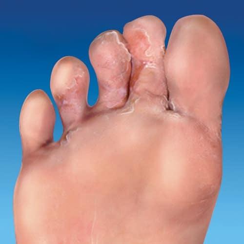 ран на ступнях