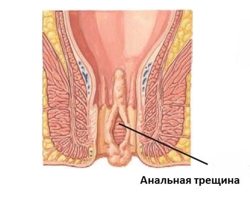 Хронически протекающие анальные трещины