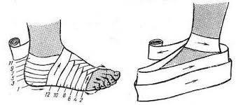 гелевыми повязками