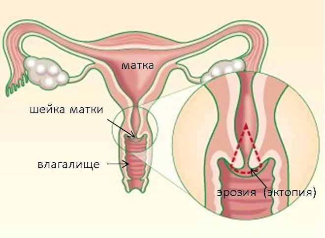 схема матка
