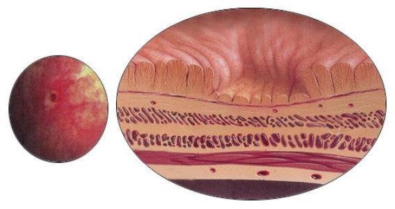 поражение ткани желудка