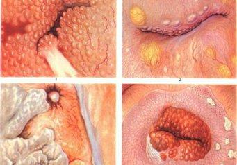 микротрещины на слизистой