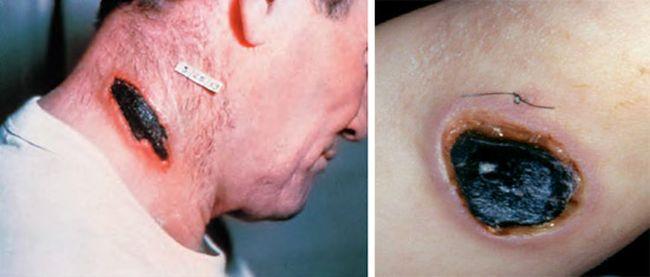 Anthrax, болезнь тряпичников, черная оспа, моровая язва