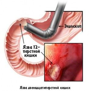 Диагностика язвы кишечника