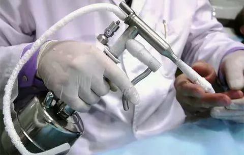 аппарат криодеструкции