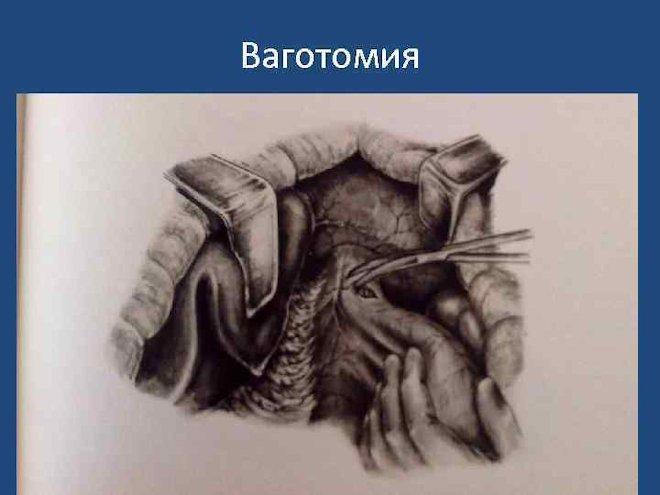 ваготомия