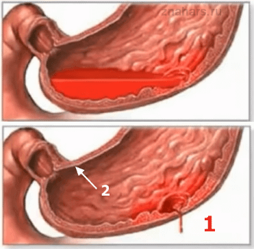 желудочное кровотечение