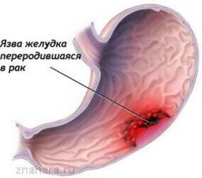язва желудка переродившаяся в рак