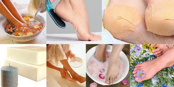 лечить трещины на пятках в домашних условиях