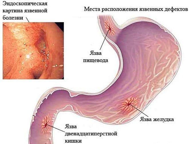 Язвенная болезнь или пептическая язва