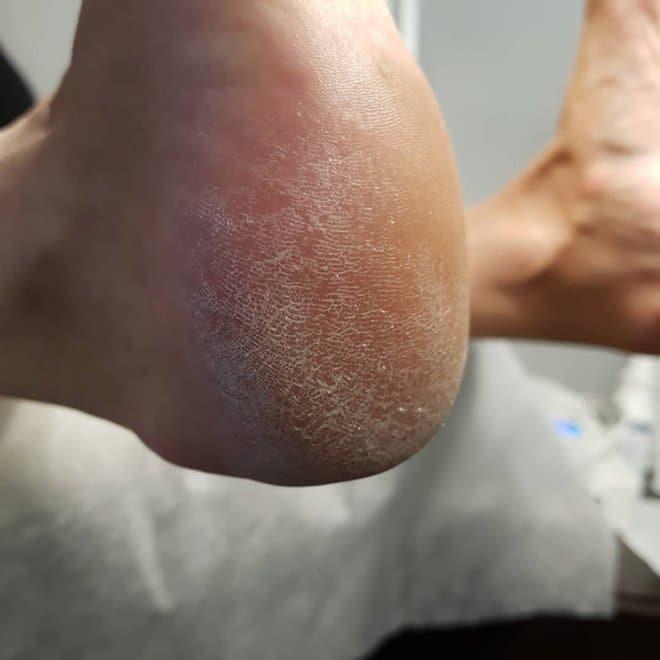 ухудшения состояния кожи