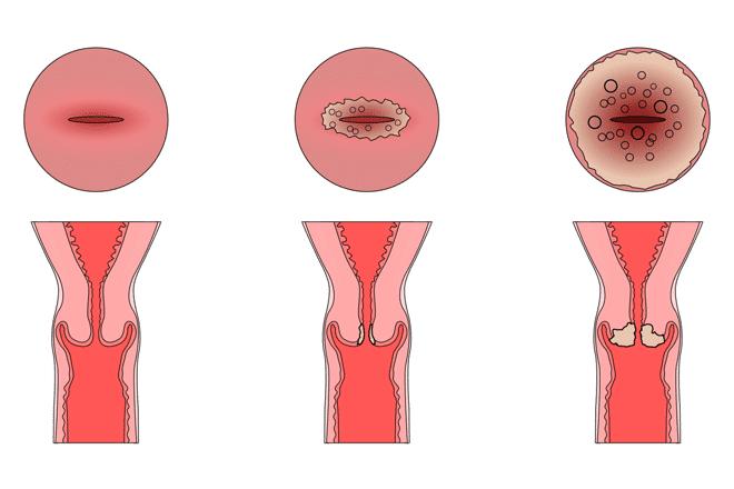 стадии эрозии шейки матки