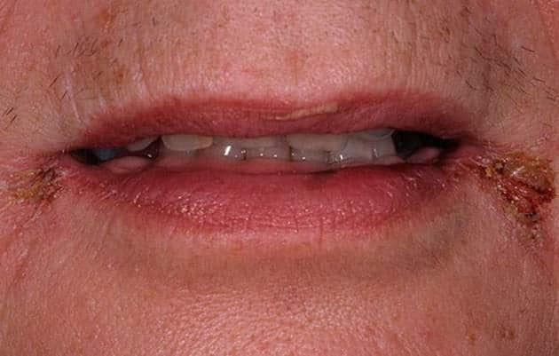 трещинки возле губ