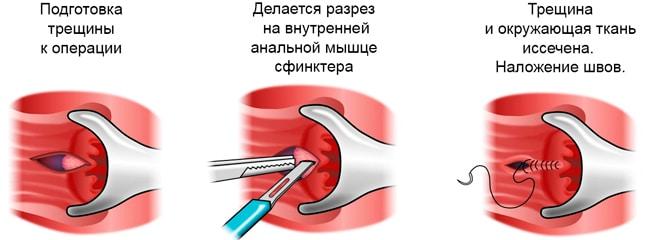 иссечение анальной трещины