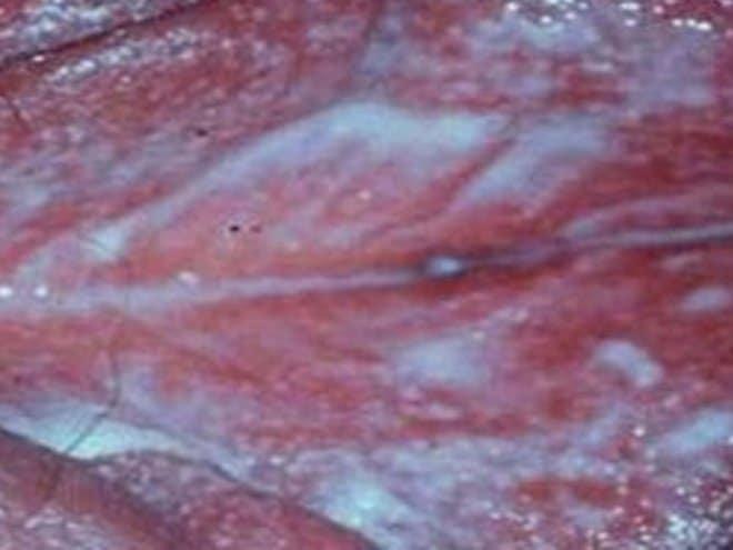 раневые поверхности в области промежности